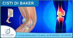 Cisti di Baker al ginocchio: cause, sintomi e soluzioni