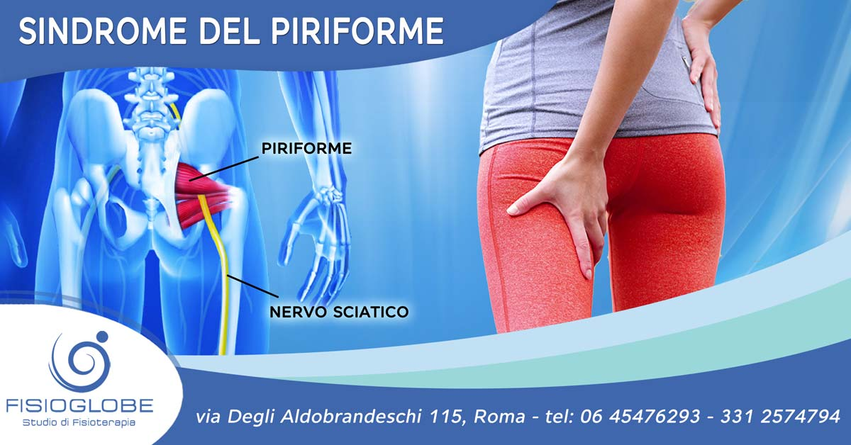 Sindrome del muscolo piriforme