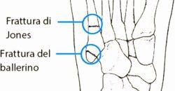 Cosa fare dopo essersi ingessato un piede